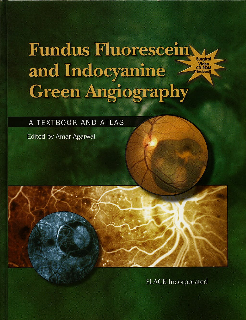 Portada del libro 9781556427879 Fundus Fluorescein and Indocyanine Green Angiography