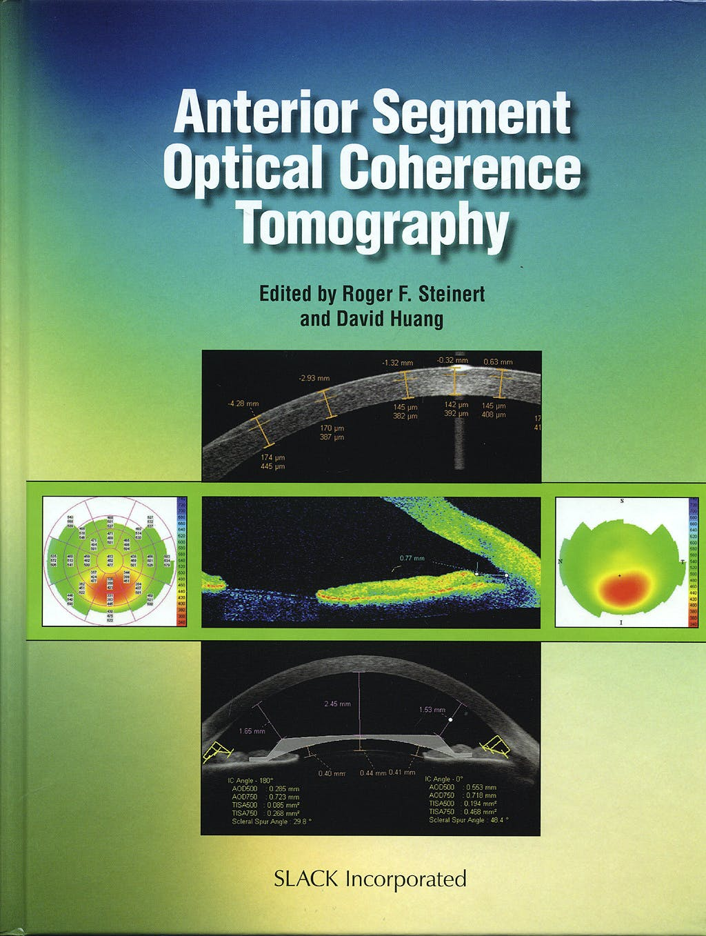 Portada del libro 9781556428081 Anterior Segment Optical Coherence Tomography