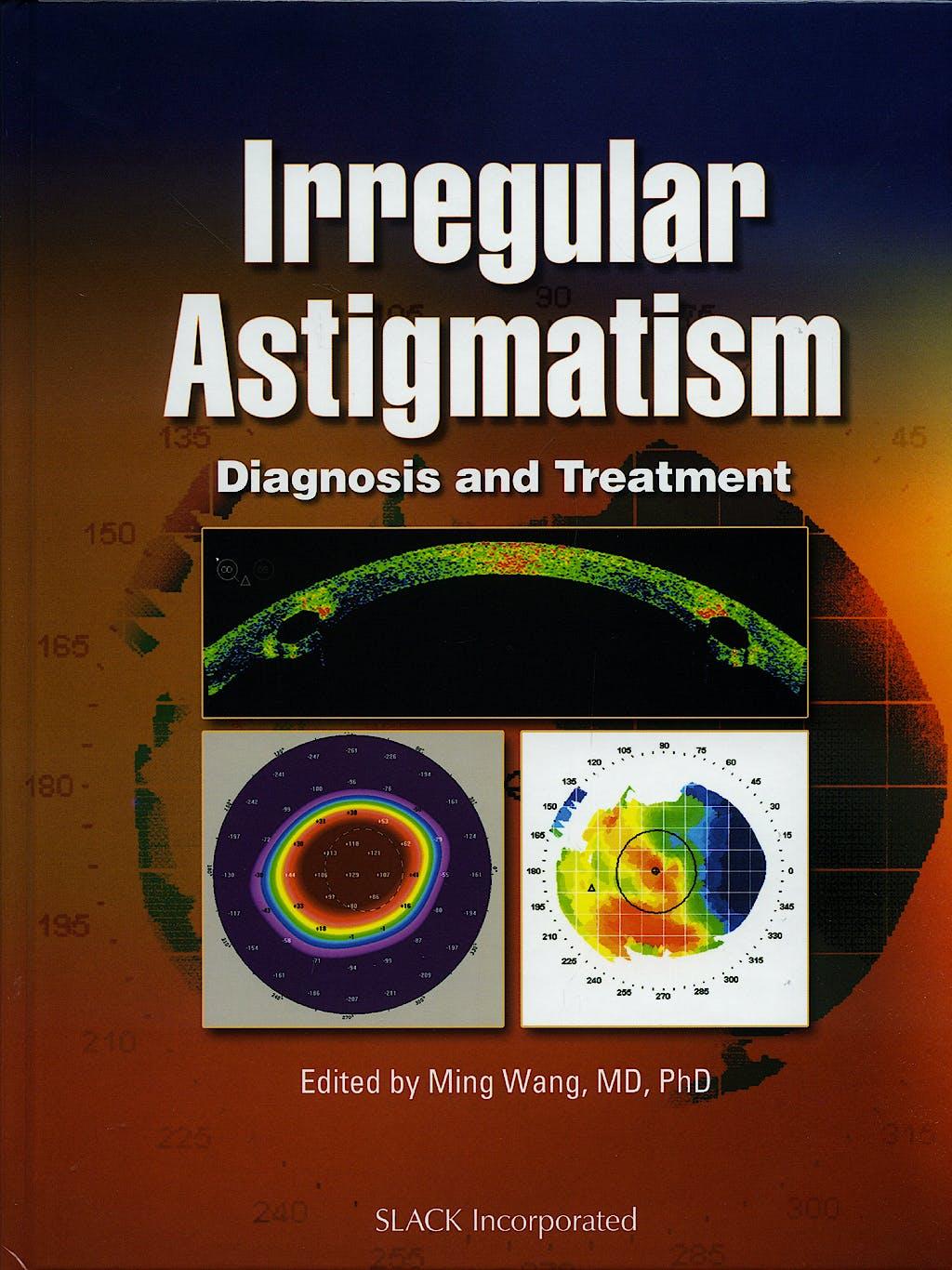 Portada del libro 9781556428395 Irregular Astigmatism. Diagnosis and Treatment