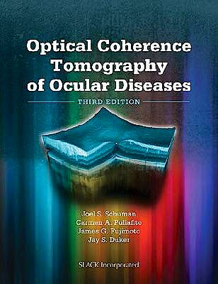 Portada del libro 9781556428647 Optical Coherence Tomography of Ocular Diseases