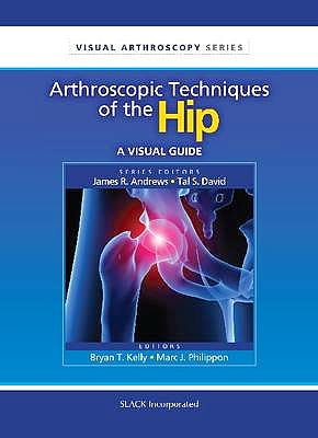 Portada del libro 9781556428869 Arthroscopic Techniques of the Hip. a Visual Guide (Visual Arthroscopy Series)