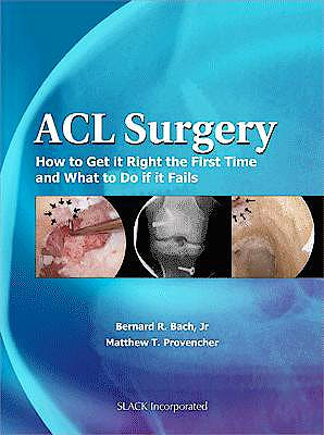 Portada del libro 9781556428951 Acl Surgery. How to Get It Right the First Time and What to Do When Your Surgery Fails