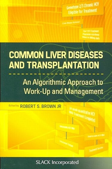 Portada del libro 9781556429033 Common Liver Diseases and Transplantation. an Algoritmic Approach to Work up and Management