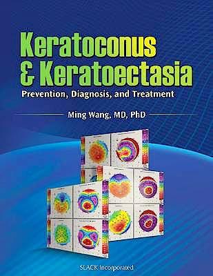 Portada del libro 9781556429132 Keratoconus and Keratoectasia. Prevention, Diagnosis and Treatment