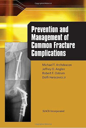 Portada del libro 9781556429750 Prevention and Management of Common Fracture Complications