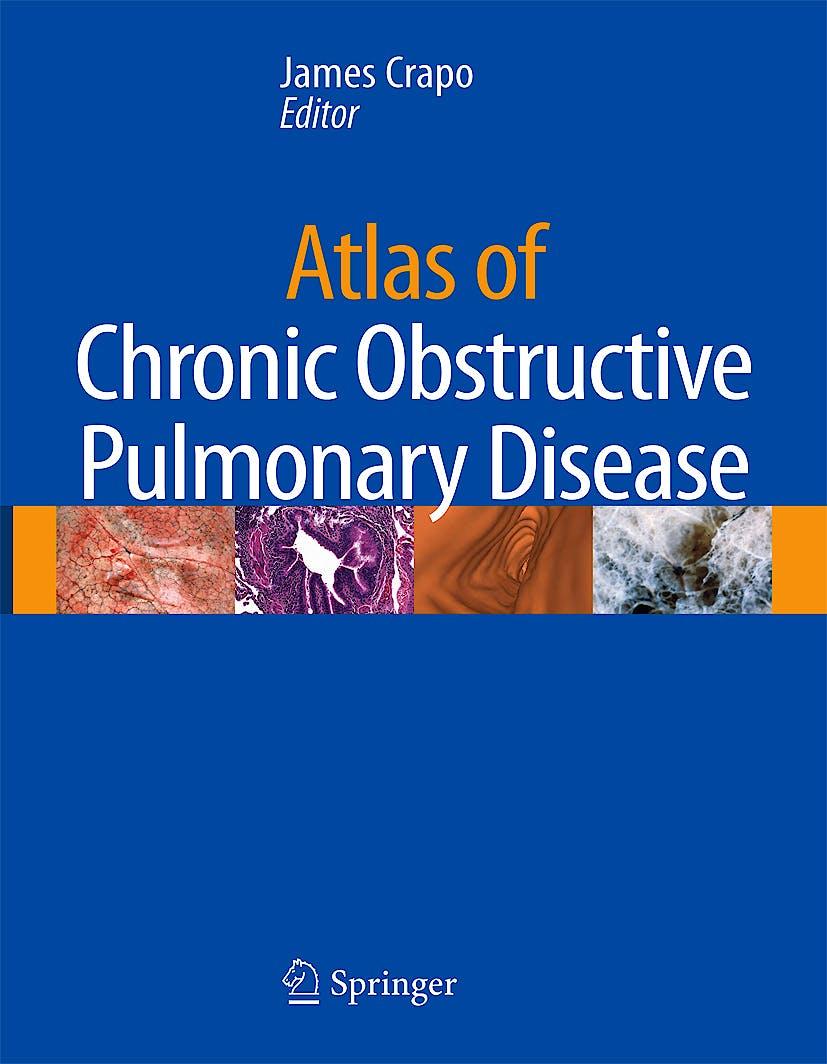 Portada del libro 9781573402941 Atlas of Chronic Obstructive Pulmonary Disease + DVD