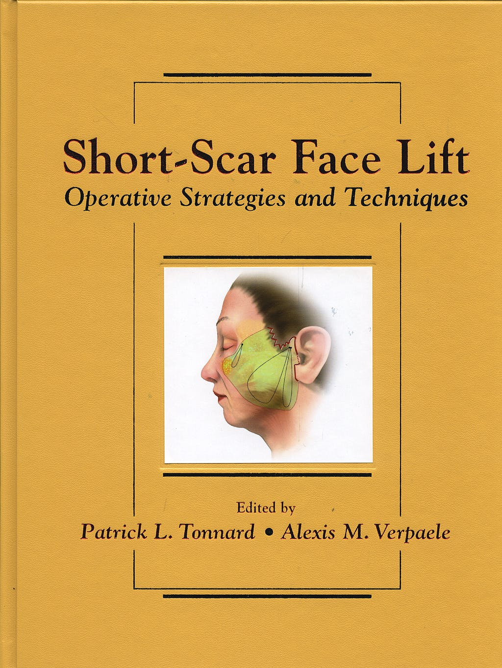 Portada del libro 9781576262726 Short-Scar Face Lift. Operative Strategies and Techniques, Vol. 2 + Dvd