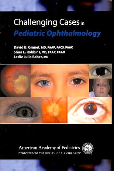 Portada del libro 9781581103052 Challenging Cases in Pediatric Ophthalmology