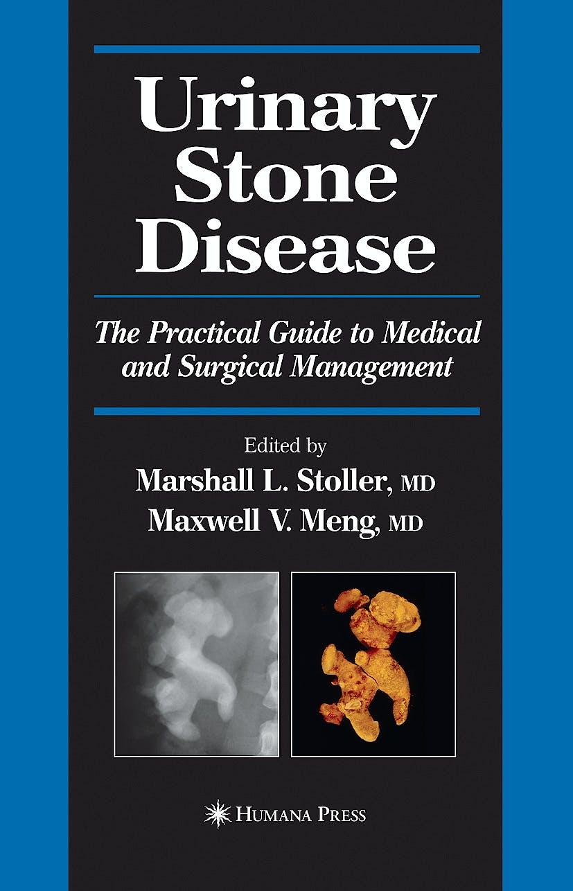 Portada del libro 9781588292193 Urinary Stone Disease