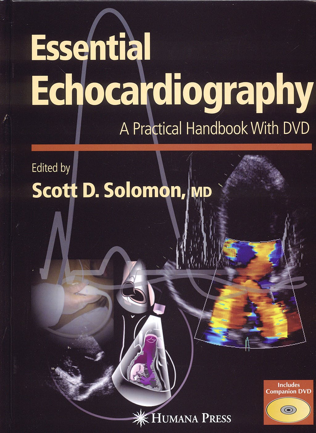 Portada del libro 9781588293220 Essential Echocardiography. a Practical Handbook + Dvd