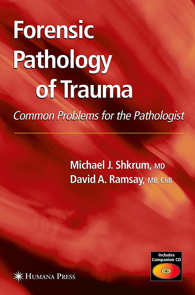 Portada del libro 9781588294586 Forensic Pathology of Trauma + Cd