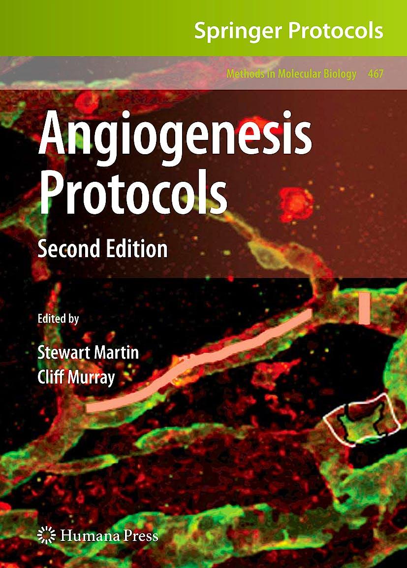 Portada del libro 9781588299079 Angiogenesis Protocols