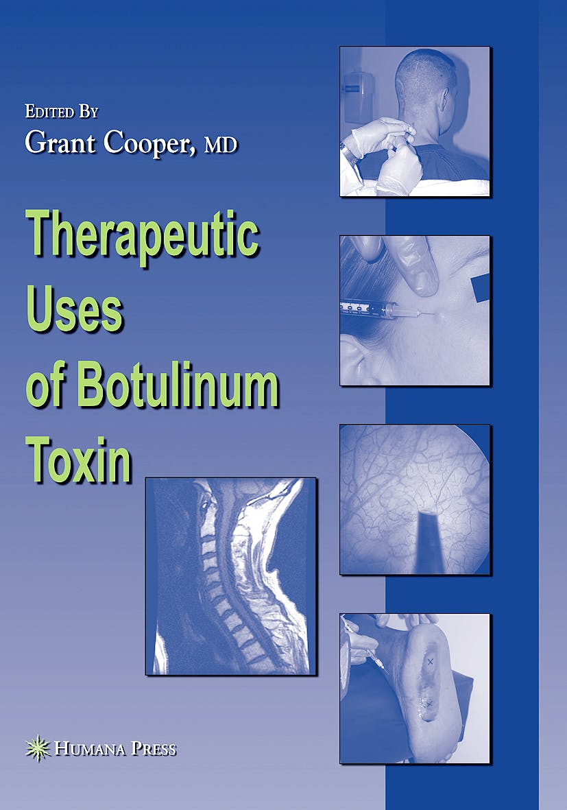 Portada del libro 9781588299147 Therapeutic Uses of Botulinum Toxin