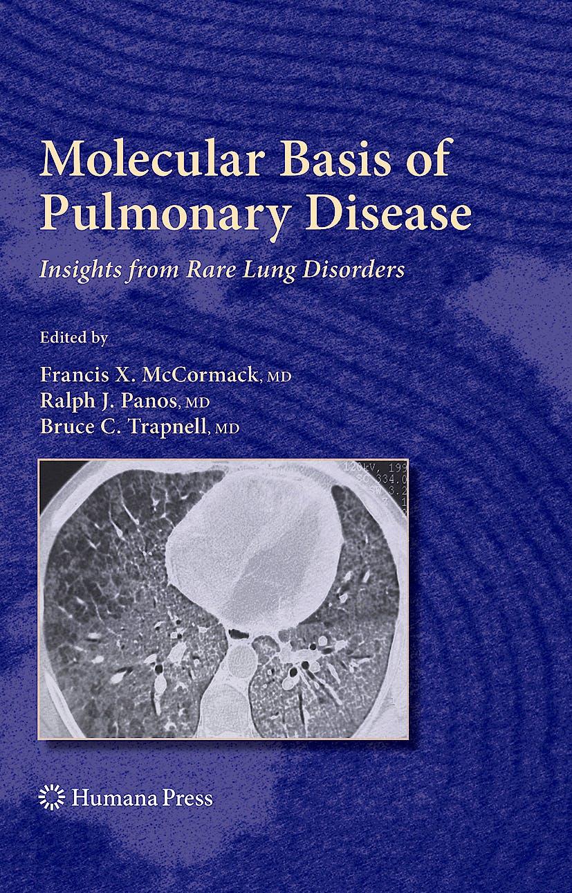Portada del libro 9781588299635 Molecular Basis of Pulmonary Disease