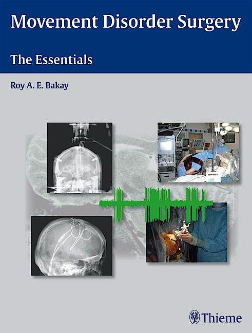 Portada del libro 9781588903976 Movement Disorder Surgery. the Essentials