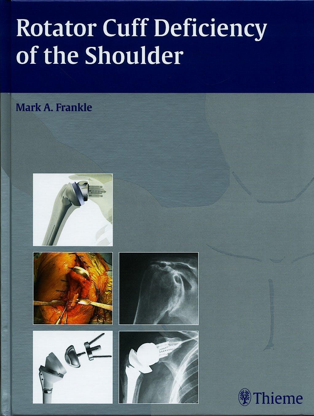 Portada del libro 9781588905062 Rotator Cuff Deficiency of the Shoulder