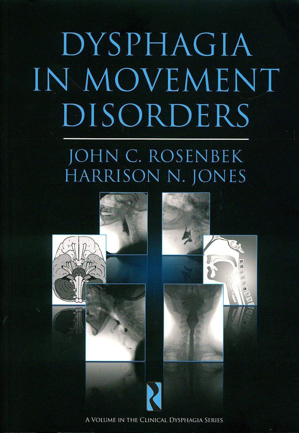 Portada del libro 9781597562287 Dysphagia in Movement Disorders