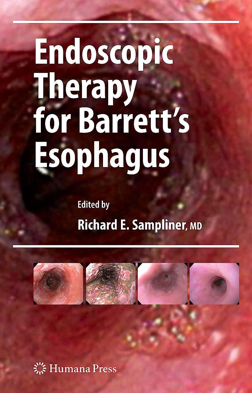 Portada del libro 9781603274449 Endoscopic Therapy for Barrett's Esophagus