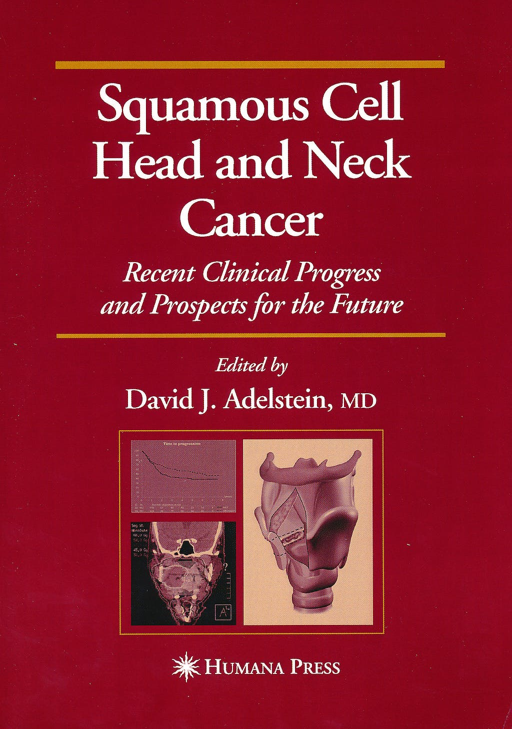 Portada del libro 9781603275088 Squamous Cell Head and Neck Cancer. Recent Clinical Progress and Prospects for the Future