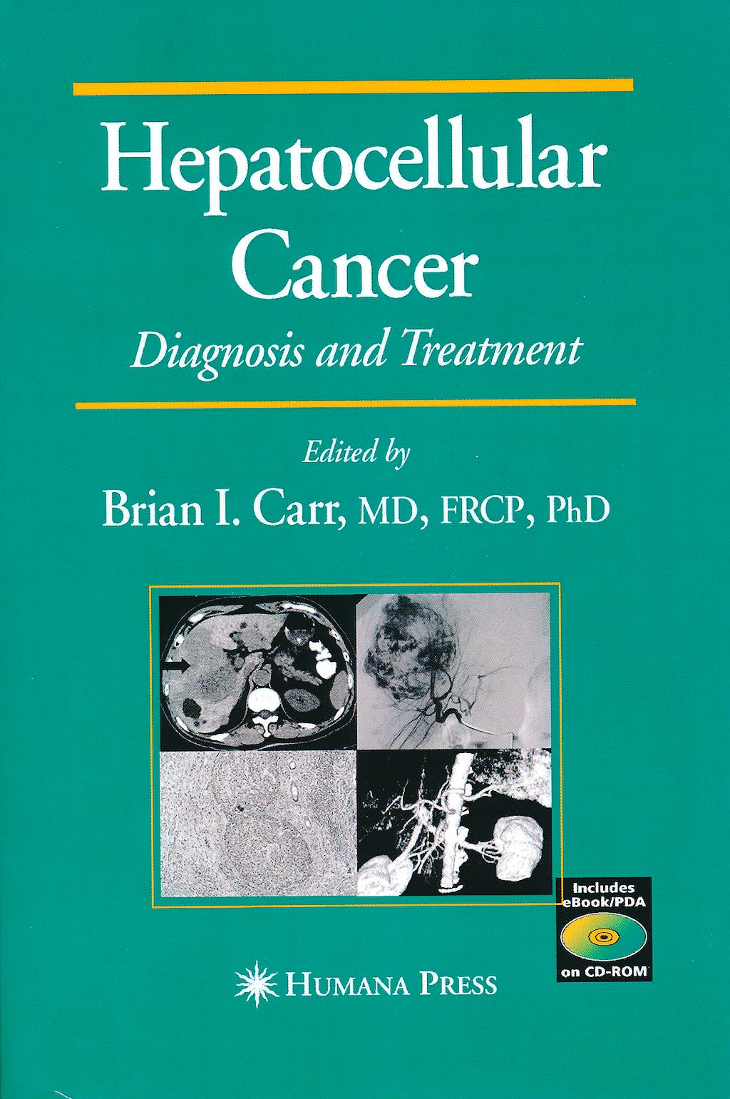 Portada del libro 9781603275095 Hepatocellular Cancer. Diagnosis and Treatment