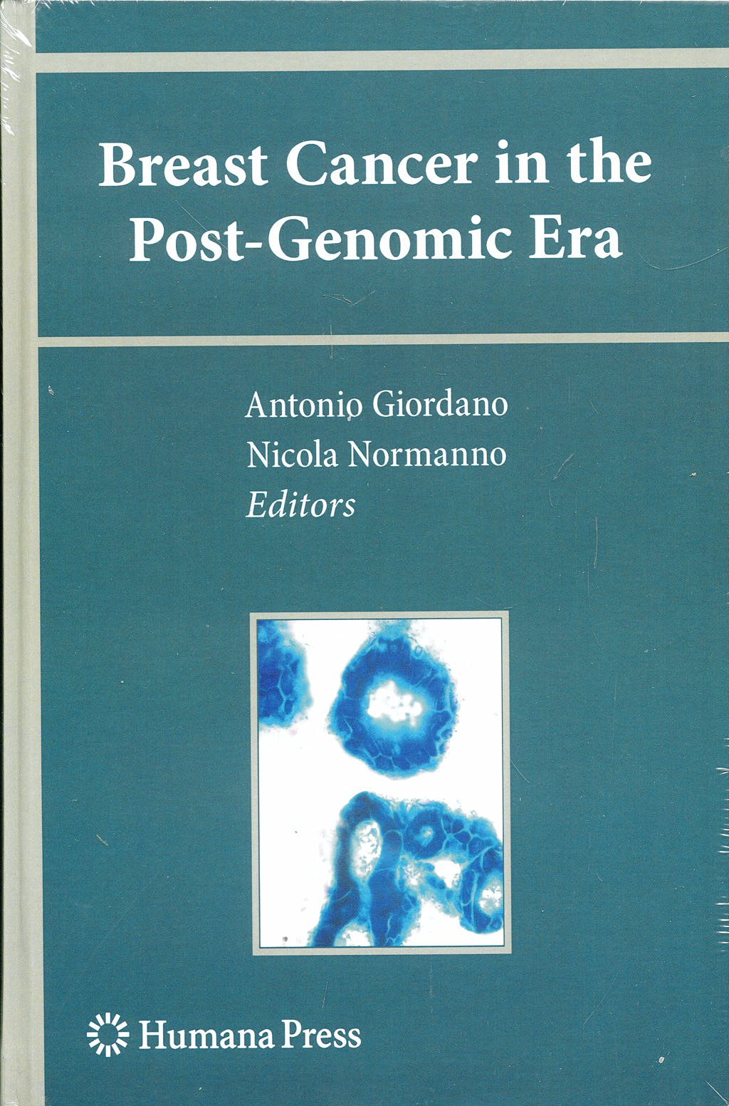 Portada del libro 9781603279444 Breast Cancer in the Post-Genomic Era (Current Clinical Oncology) (Hardcover)
