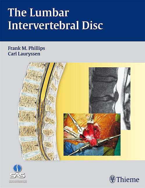 Portada del libro 9781604060485 The Lumbar Intervertebral Disc