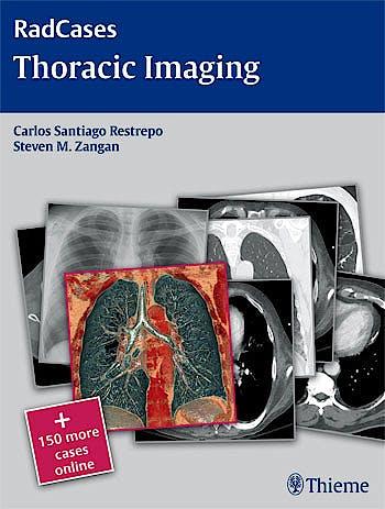 Portada del libro 9781604061871 Thoracic Imaging (Radcases Series) + 150 More Cases Online
