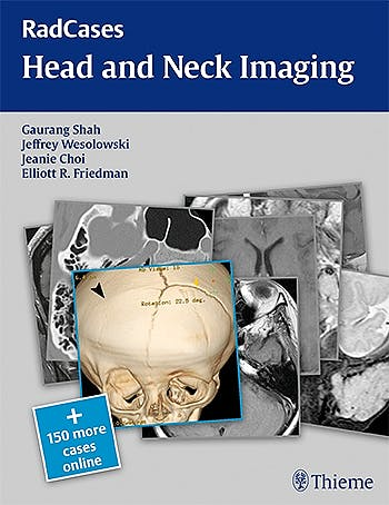 Portada del libro 9781604061932 Head and Neck Imaging (Radcases Series) + 150 More Cases Online