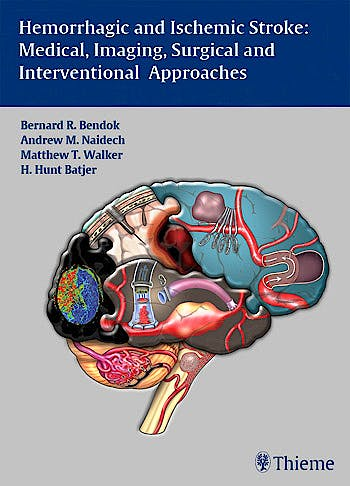 Portada del libro 9781604062342 Hemorrhagic and Ischemic Stroke. Medical, Imaging, Surgical and Interventional Approaches