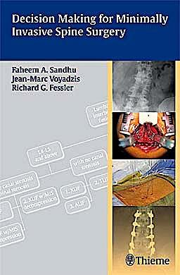 Portada del libro 9781604062663 Decision Making for Minimally Invasive Spine Surgery