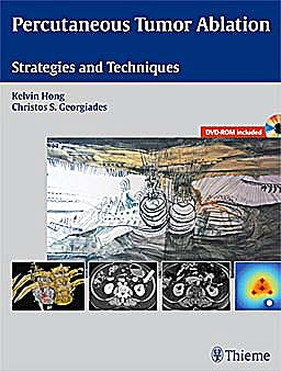Portada del libro 9781604063066 Percutaneous Tumor Ablation. Strategies and Techniques + Dvd-Rom