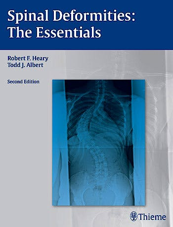 Portada del libro 9781604064117 Spinal Deformities: The Essentials