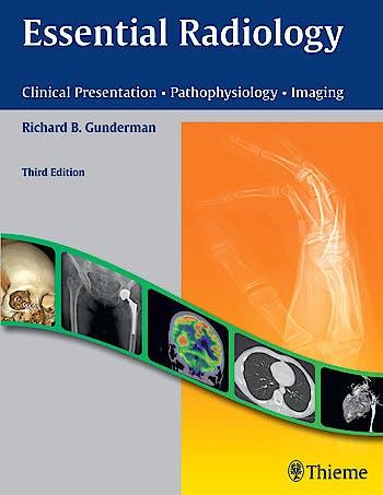 Portada del libro 9781604065732 Essential Radiology. Clinical Presentation, Pathophysiology, Imaging