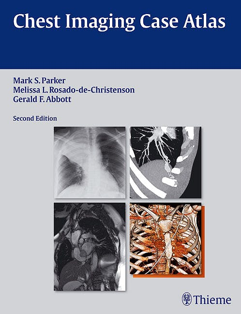 Portada del libro 9781604065909 Chest Imaging Case Atlas