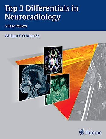 Portada del libro 9781604067231 Top 3 Differentials in Neuroradiology. a Case Review