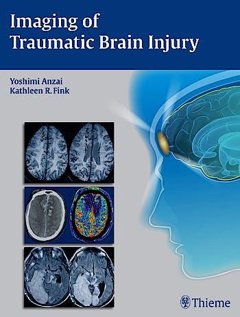 Portada del libro 9781604067286 Imaging of Traumatic Brain Injury