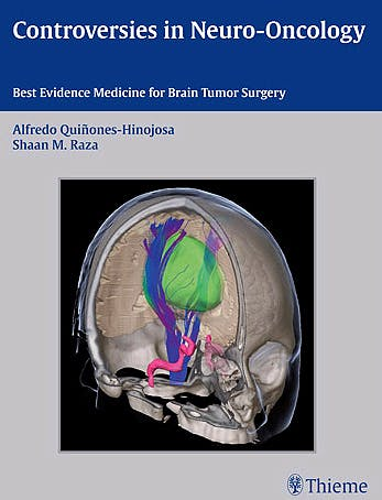 Portada del libro 9781604067552 Controversies in Neuro-Oncology. Best Evidence for Brain Tumor Surgery