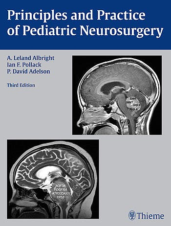 Portada del libro 9781604067996 Principles and Practice of Pediatric Neurosurgery