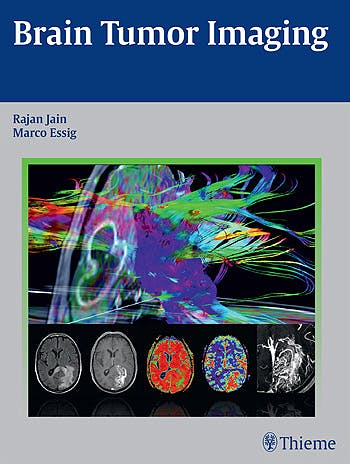 Portada del libro 9781604068061 Brain Tumor Imaging