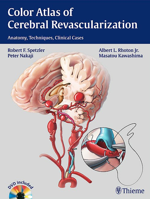 Portada del libro 9781604068221 Color Atlas of Cerebral Revascularization. Anatomy, Techniques, Clinical Cases + Dvd