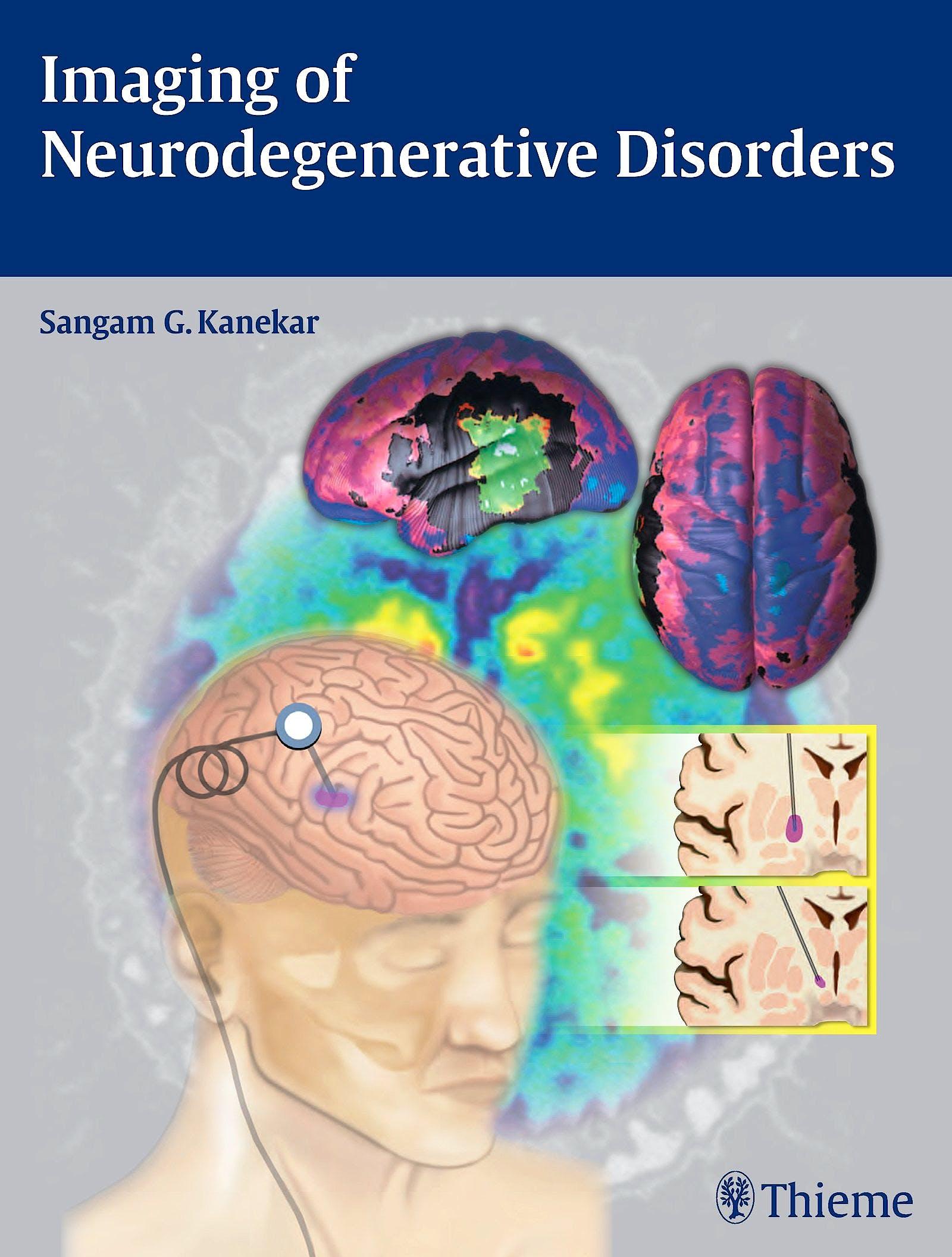 Portada del libro 9781604068542 Imaging of Neurodegenerative Disorders