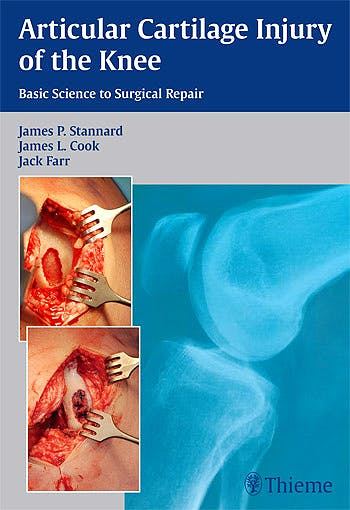 Portada del libro 9781604068580 Articular Cartilage Injury of the Knee. Basic Science to Surgical Repair