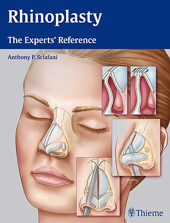 Portada del libro 9781604068672 Rhinoplasty. The Experts' Reference