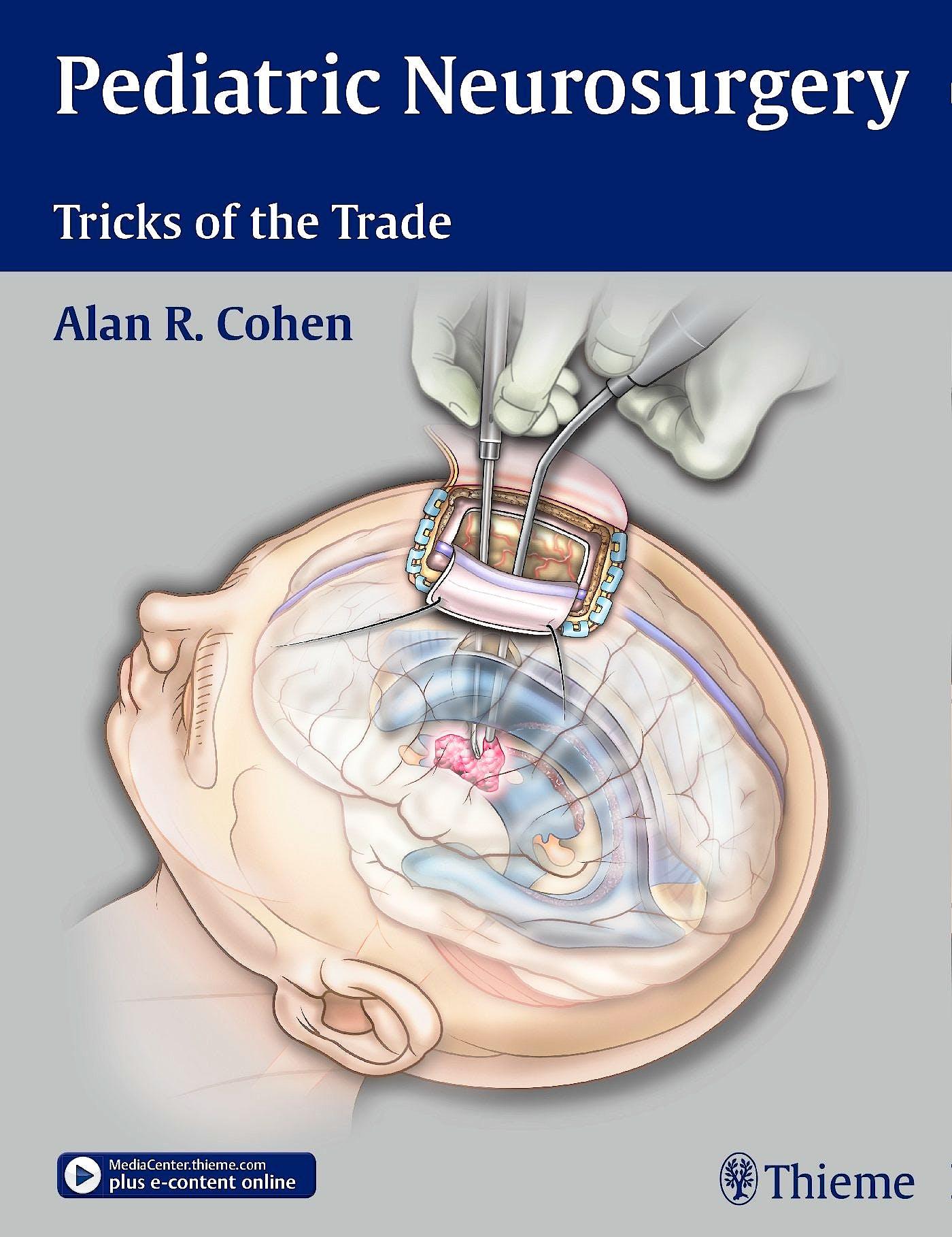 Portada del libro 9781604068696 Pediatric Neurosurgery. Tricks of the Trade
