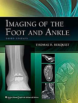 Portada del libro 9781605475721 Imaging of the Foot and Ankle