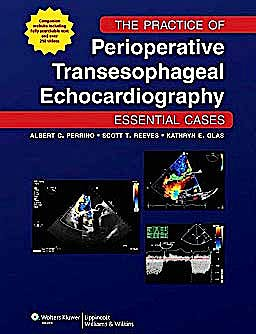 Portada del libro 9781605477169 The Practice of Perioperative Transesophageal Echocardiography. Essential Cases