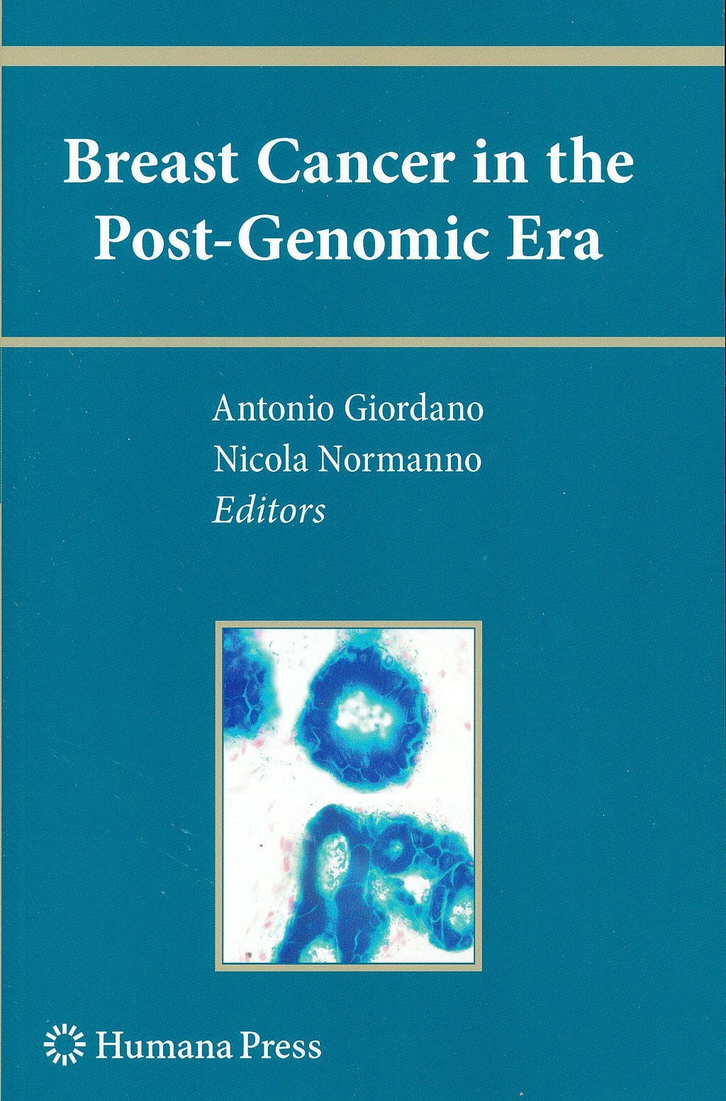 Portada del libro 9781607614661 Breast Cancer in the Post-Genomic Era (Current Clinical Oncology) (Softcover)