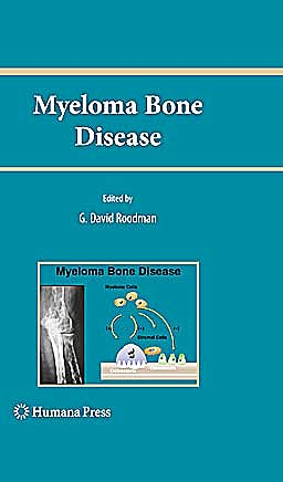 Portada del libro 9781607615538 Myeloma Bone Disease