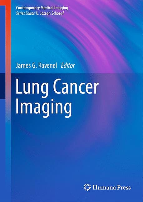 Portada del libro 9781607616191 Lung Cancer Imaging (Contemporary Medical Imaging Series)
