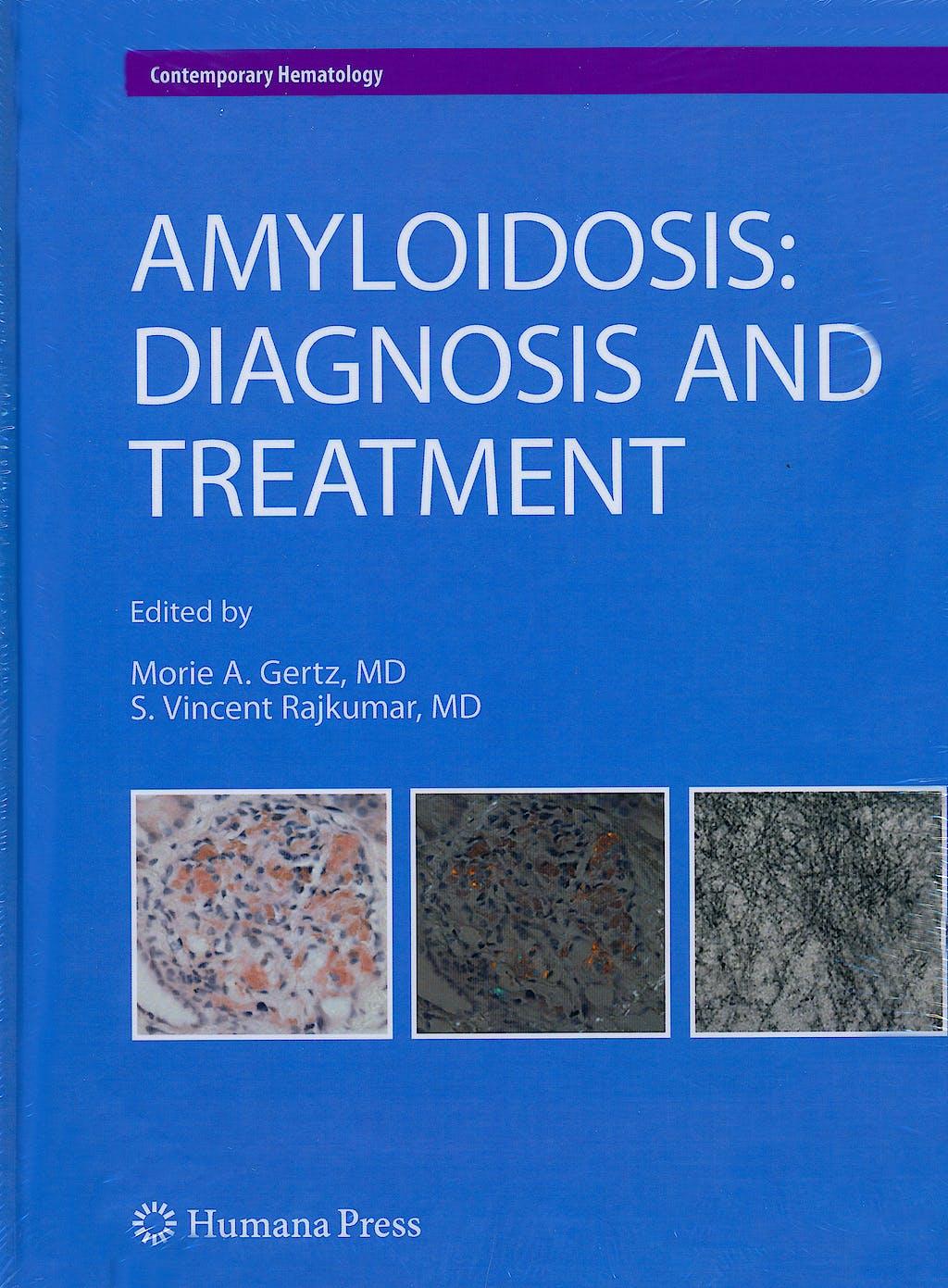 Portada del libro 9781607616306 Amyloidosis: Diagnosis and Treatment (Contemporary Hematology)